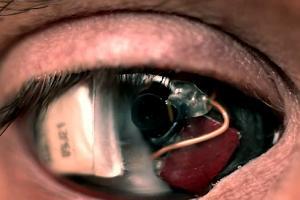 Eyeborg